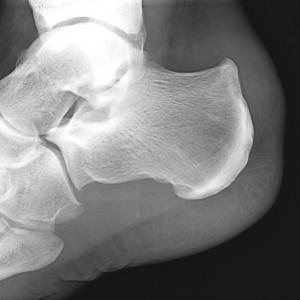 röntgenfoto Haglundse exostose