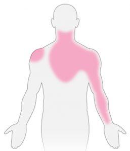 microvasculaire angina pectoris