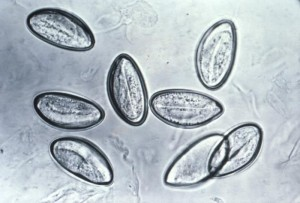 eitjes Enterobius vermicularis (aarsmade)