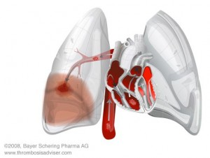 Longembolie (pulmonale embolie)