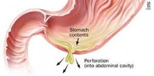 maagperforatie