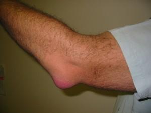 slijmbeursontsteking van de elleboog