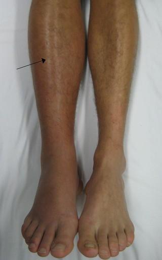 trombose in voet symptomen