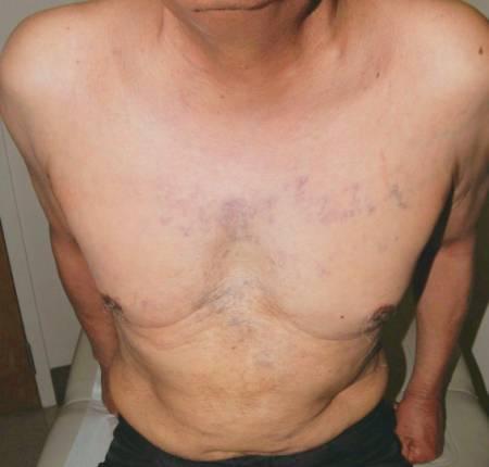 symptomen longtumor rugpijn