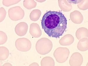 plasmacel (plasmocyt)