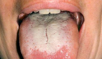 oral herpes in mouth pictures