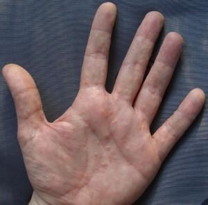 blaasjeseczeem (acrovesiculeus eczeem)
