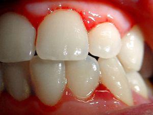 bloedend tandvlees (gingivabloeding)