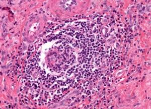 sarcoïdose - granuloom