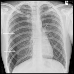 klaplong (pneumothorax)