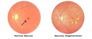 leeftijdsgebonden maculadegeneratie