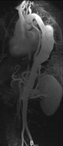 ziekte van Takayasu (Takayasu-arteritis)