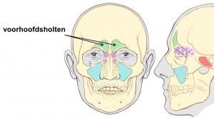 ontsteking van de voorhoofdsholte - voorhoofdsholteontsteking - sinusitis frontalis