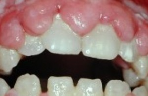 opgezwollen tandvlees (gingivahyperplasie)