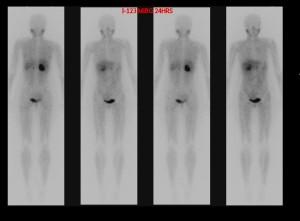 MIBG-scan feochromocytoom