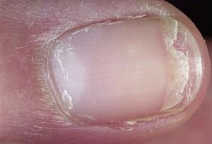 afbrokkelende nagels