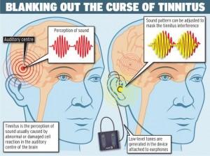 neuromodulatie tegen oorsuizen