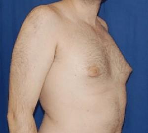 borstvorming bij mannen (gynecomastie)