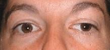 myasthenia gravis - afhangend bovenooglid