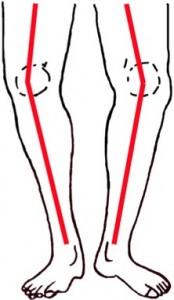 gonartrose knie behandeling