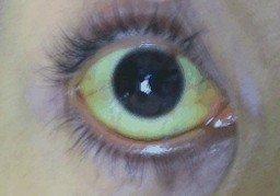 gele verkleuring van het oogwit door primaire scleroserende cholangitis