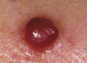 granuloma pyogenicum