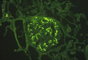 immunofluorescentie bij IgA-nefropathie (ziekte van Berger)