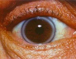 familiaire hypercholesterolemie - arcus corneae