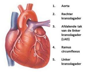 kransslagaders (coronairarteriën)