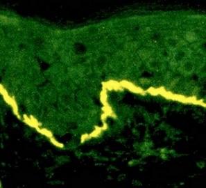 immunofluorescentie bij herpes gestationis