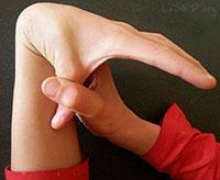 hypermobiele gewrichten (overstrekbare gewrichten)