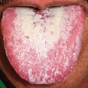 orale candidiasis (spruw)