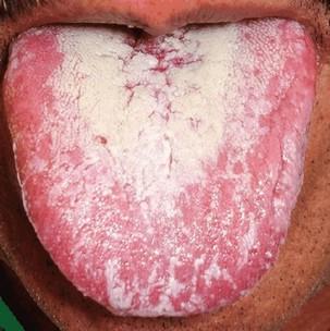 orale candidiasis (spruw)