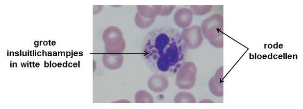 syndroom van Chédiak-Higashi - insluitlichaampjes in witte bloedcel