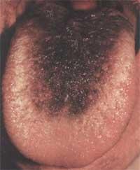 zwarte tong door zwarte haartong (lingua villosa nigra)