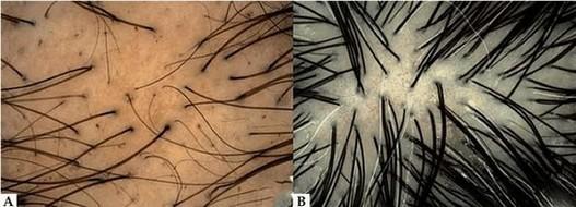 cartilage-hair hypoplasie - dunne beharing