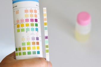 zelftesten urine - strips met kleurenkaart