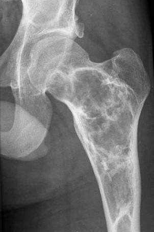 fibreuze dysplasie op röntgenfoto van het femur