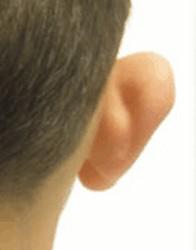 flaporen - afstaande oren