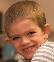 jongen met het fragiele X-syndroom