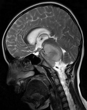 DIPG hersenstamkanker op MRI-scan