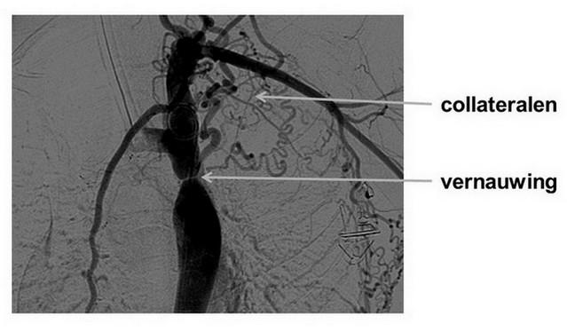 coarctatio aortae met collateralen op angiografie