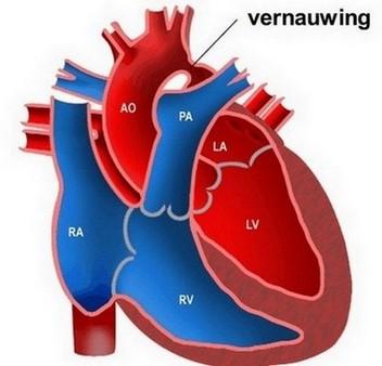 coarctatio aortae - vernauwing van de grote lichaamsslagader