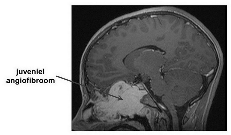 juveniel angiofibroom met intracraniële uitbreiding op MRI-scan