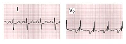 mitralisklepstenose - ECG