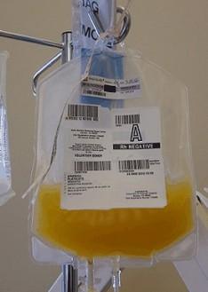 trombocytentransfusie bij diffuse intravasale stolling