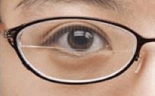 brilleglas met Fresnel prisma voor mensen met oculaire myasthenie