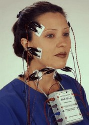 elektromyografie (EMG) bij oculaire myasthenie