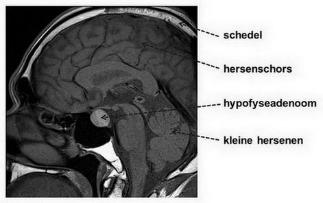 hypofyseadenoom - MRI-scan hersenen