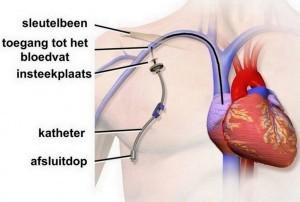 centraal veneuze katheter als mogelijke oorzaak luchtembolie